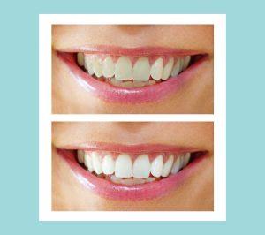 sbiancamento-dentale-immagine-2