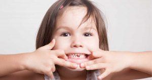 caduta denti da latte