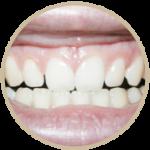 Estetica-dentale1